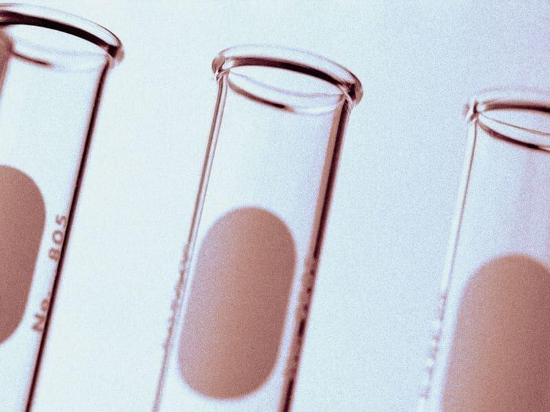 Stem cell Transplantation, verlangsamt das Fortschreiten der multiplen Sklerose