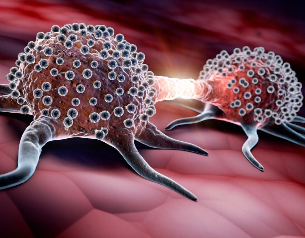 Krebs: Ein neu entdeckter Wirkstoff unterdrückt die Bildung von Metastasen