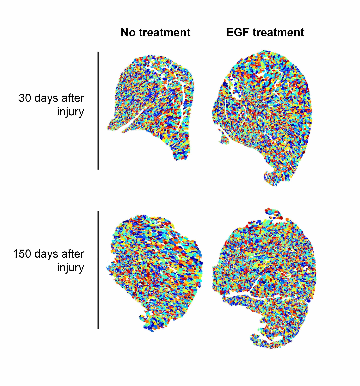 Entdeckung Punkte, um neue, innovative Möglichkeit zur Behandlung von Duchenne-Muskeldystrophie
