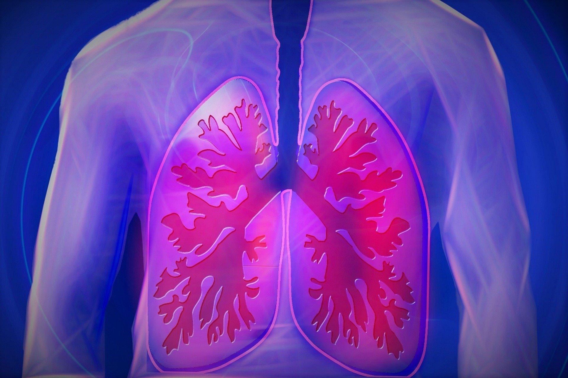 Aktivierte PMN exosomen sind pathogene Entitäten, die Ursache der Zerstörung in der COPD-Lunge