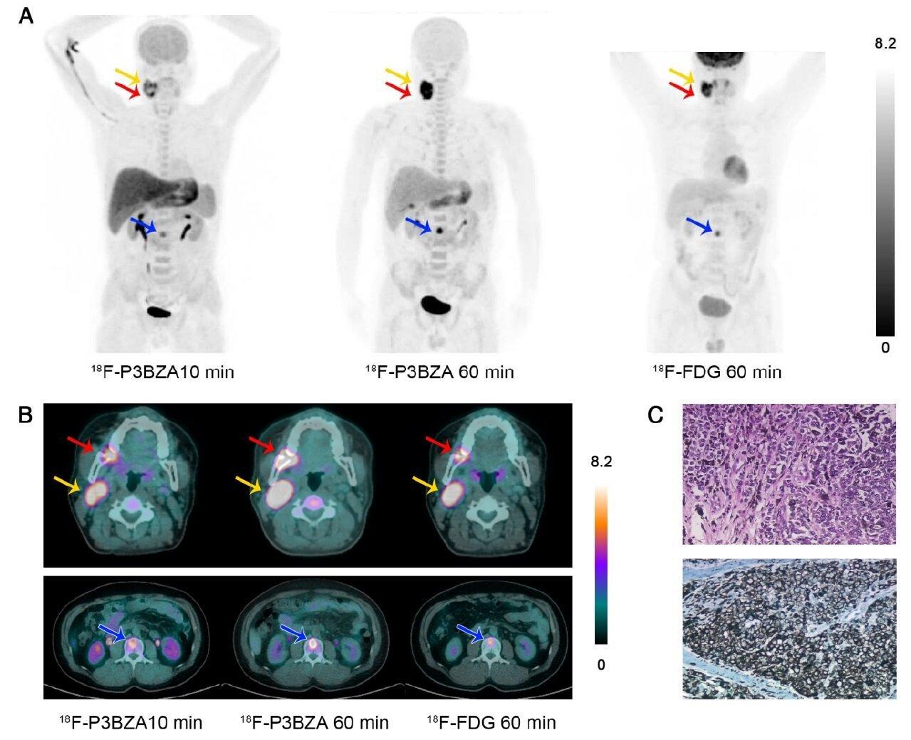 Neue PET-Sonde könnte verbessern die Erkennung von primären und metastasierten Melanomen