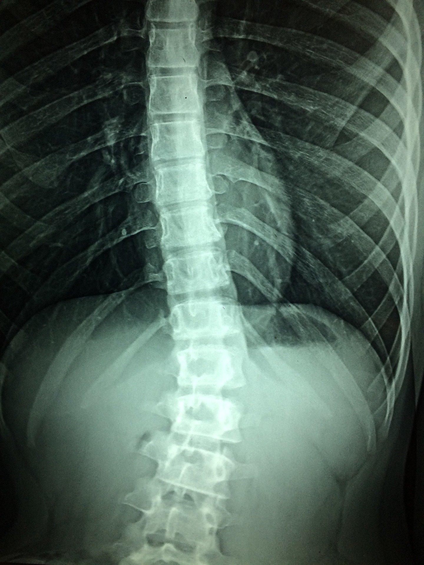 Kann die Nanotechnologie auch rewire-eine Verletzte Rückenmark?