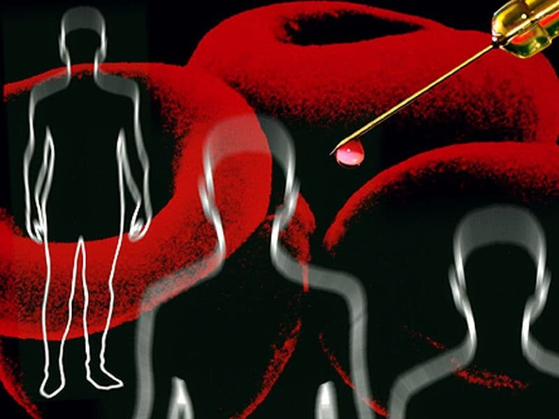 Experimentelle test kann schnell diagnostizieren, sepsis