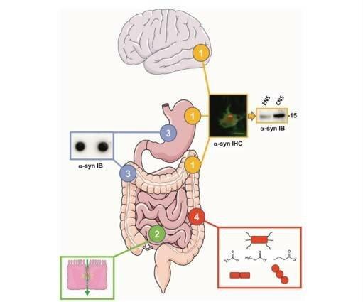 Die Einbeziehung des Darms in Parkinson ' s disease: hype oder Hoffnung?