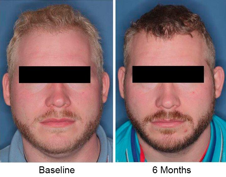 Nitisinone erhöht melanin in der Menschen mit Albinismus
