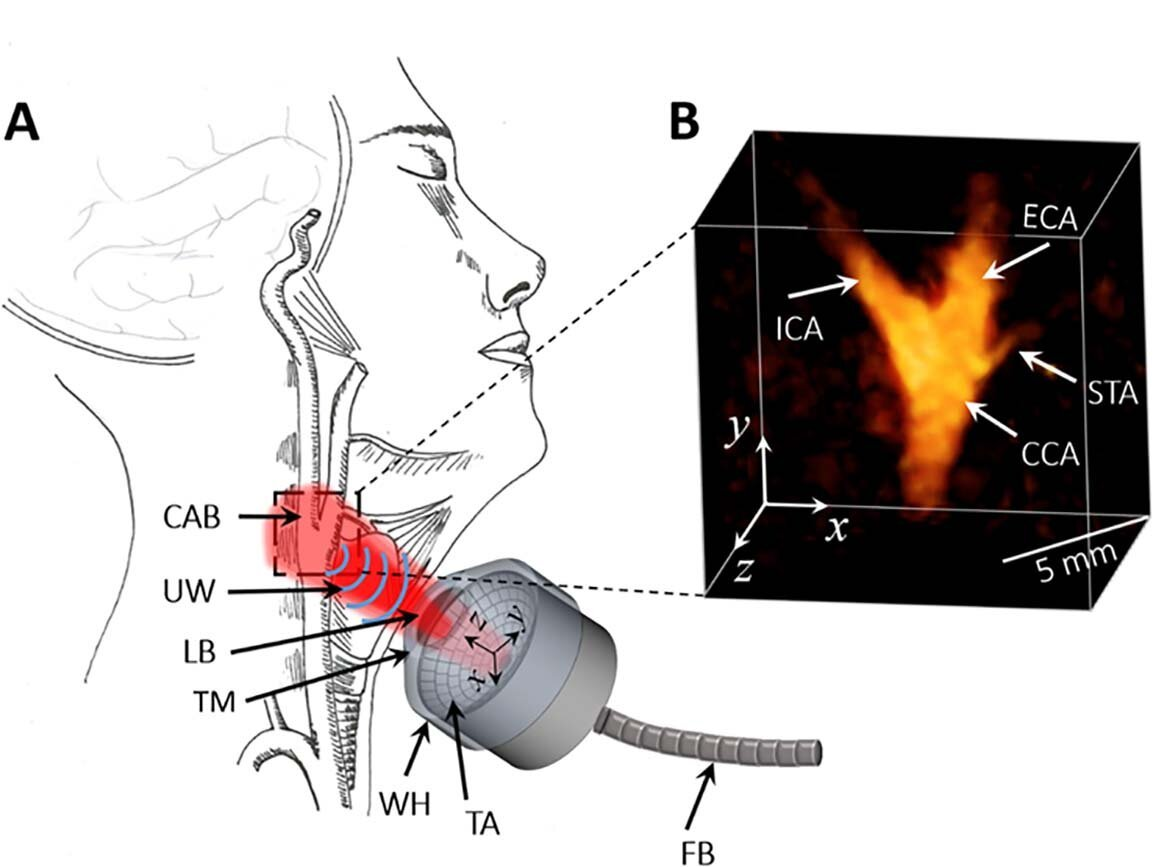 Neuartige Technik, die genau beurteilt, Herz-Kreislauf-Risiken