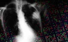 ZEB1 drosseln therapeutische Ziel, dem Schutz der KRAS-mutant Lungenkrebs