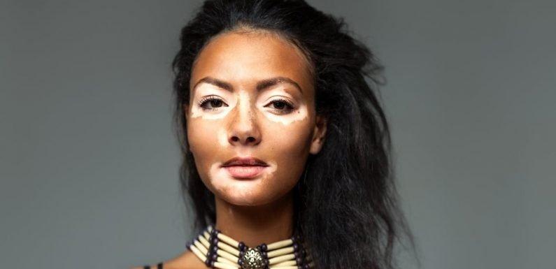 Neue Behandlung in den Werken für entstellenden Hautkrankheit, vitiligo