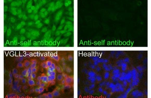 Die Entdeckung könnte auch erklären, warum Frauen bekommen Autoimmun-Erkrankungen weit häufiger als Männer