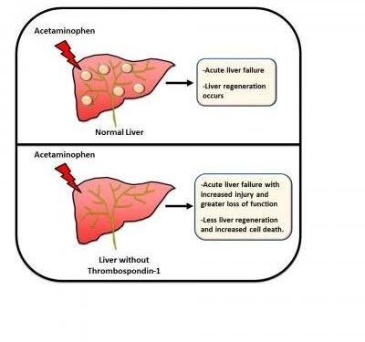 Wissenschaftler finden neue Therapie-Ziel für Medikamenten-induzierten Leberversagen