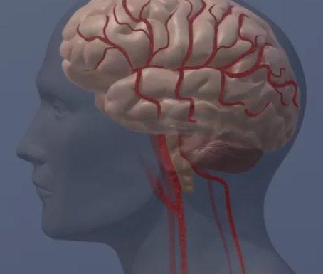 Medikamente, um zu verhindern, Schlaganfall und Demenz zeigen Versprechen in der frühen Testversion