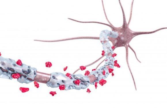 Forscher: Wie entstehen die Nervenschäden bei Multipler Sklerose?