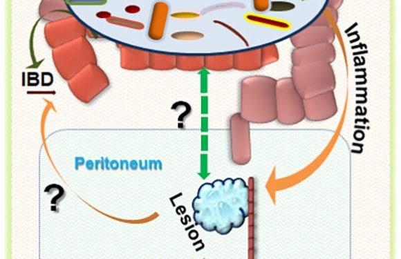 Antibiotika kann die Behandlung von Endometriose