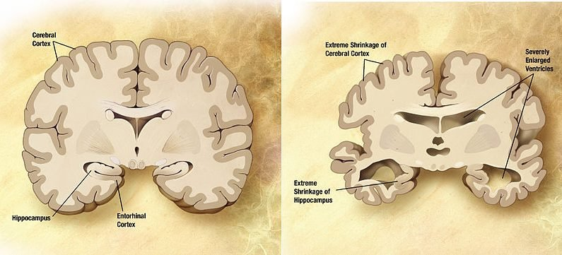 Schlafen konnte Moleküle führen zu einem Bluttest für Alzheimer-Krankheit?