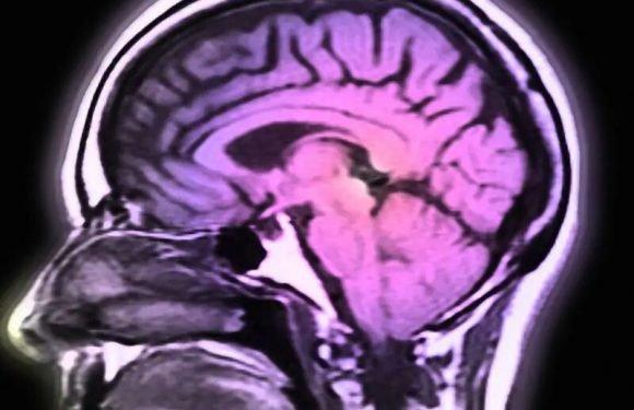 Statin-Gebrauch reduziert Demenz-Risiko nach einer Gehirnerschütterung bei den Senioren