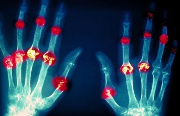 Neue Hinweise auf Gewebeschäden identifiziert rheumatoide arthritis und lupus