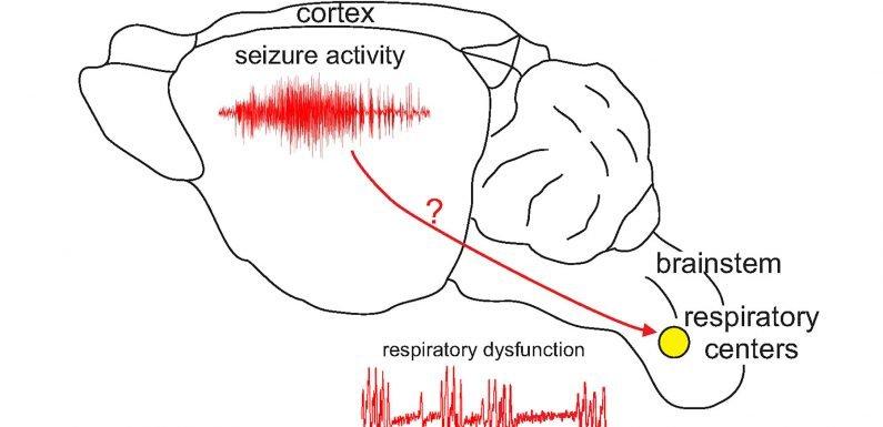 Plötzlicher Tod bei Epilepsie und Atmung Schwierigkeiten verknüpft, schlechte gene