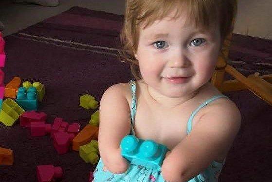 Tochter Milana kam ohne Gliedmaßen zur Welt – Kölner Eltern erzählen, wie das ihr Leben prägt