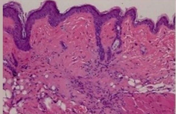 Fehlgeschlagen Krebs-Medikament Erfolg versprechend für Sklerodermie und andere fibrotische Bedingungen