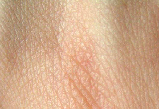 Einsatz von tape-Streifen, die in frühen Beginn der pädiatrischen atopische dermatitis