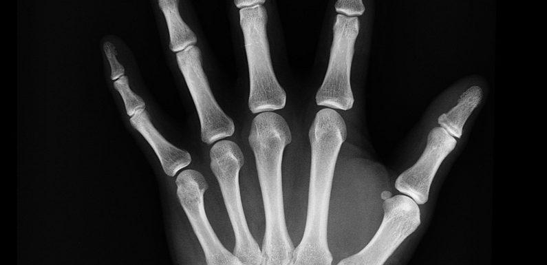 Rund 15.000 Spanier möglicherweise nicht bewusst, Sie leiden unter der seltenen Knochenkrankheit hypophosphatasia