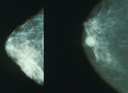 Forscher identifizieren einen Prozess verantwortlich für die therapeutische Resistenz bei Brustkrebs
