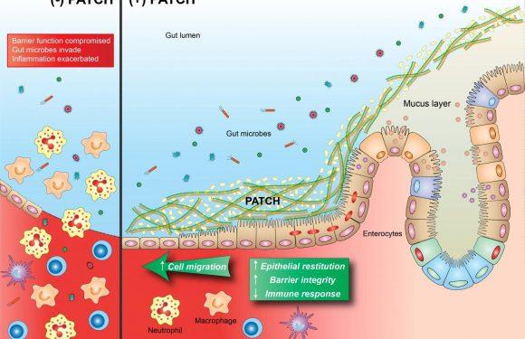 Stärkung der mukosalen Heilung mit nachgebautem probiotische