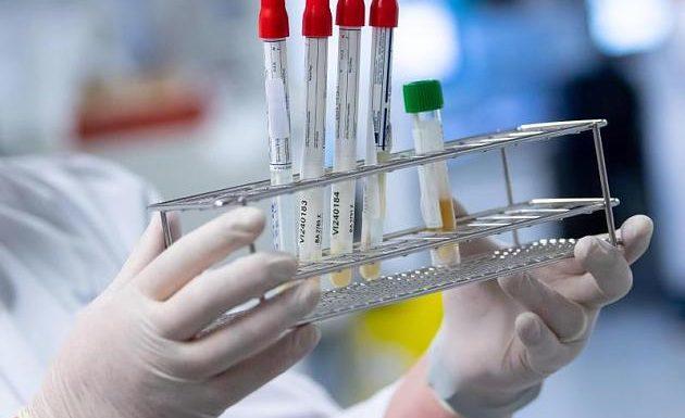 Richtungsweisende Immuntests starten in wenigen Wochen – Top-Virologe Drosten erklärt Wichtigkeit