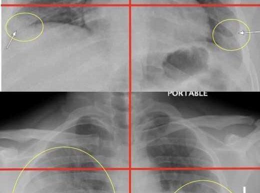 Chest X-Strahlen in der Notaufnahme helfen kann Vorhersagen, schwere der COVID-19 im Jungen und mittleren Alters Erwachsene