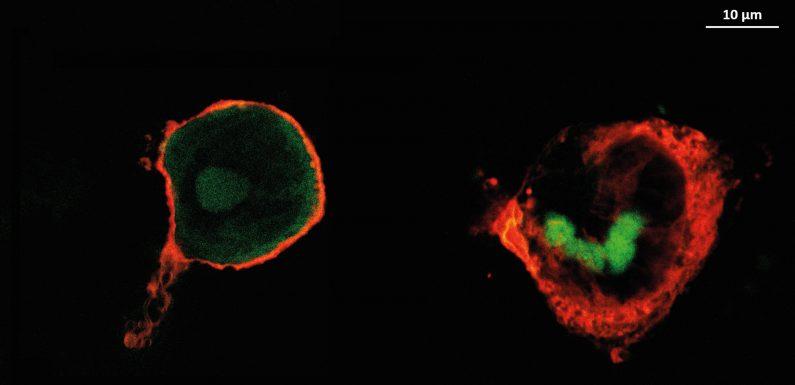 Anti-entzündliche Beschichtungen reduzieren könnte Komplikationen nach der Implantation, Studie zeigt,