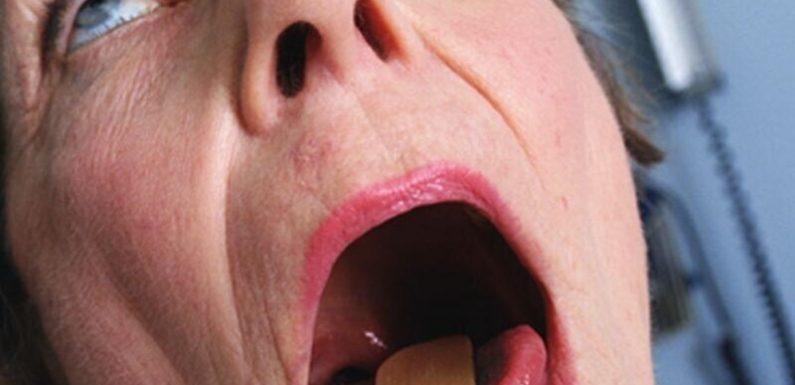 Ein weiterer COVID-19 symptom tritt in die Liste: Mund Hautausschlag