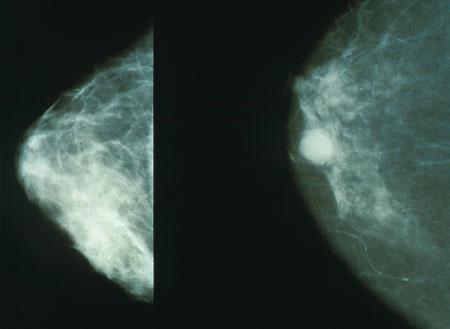 HDAC6 Steuern können tumor Wachstum und stoppen die Metastasierung in triple-negativem Brustkrebs