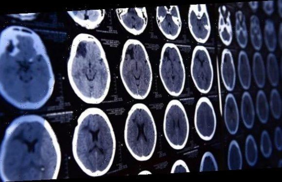 Weniger Röntgenkontrastmittel in der Umwelt durch Auffangmöglichkeiten
